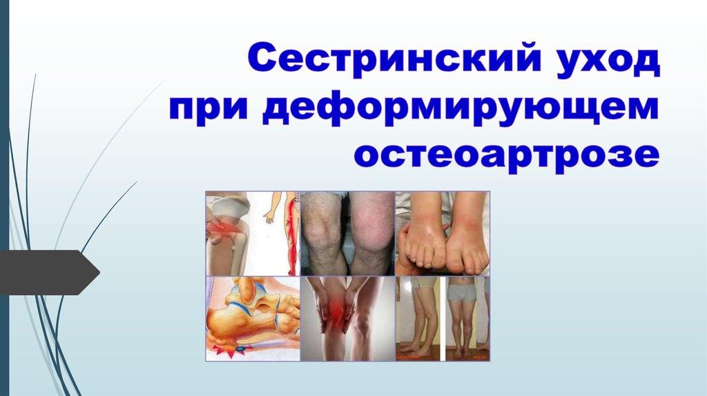 уход при остеоартрозе