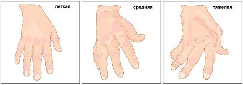 стадия развития болезни